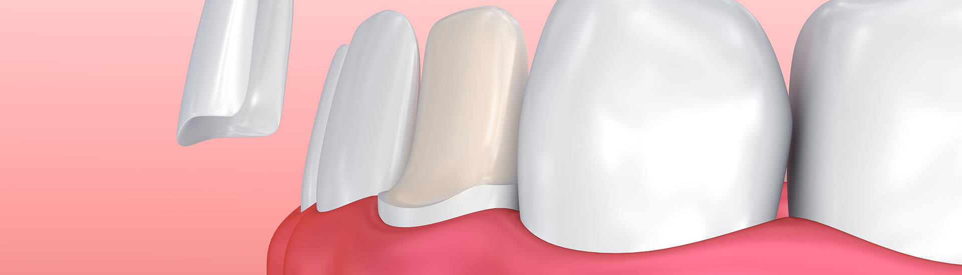 Dental Veneers in Coppell, TX